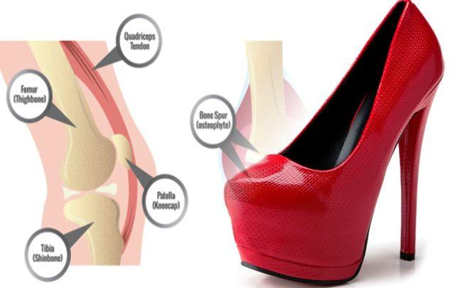 Sepatu Hak Tinggi Bisa Menyebabkan Cedera Lutut Permanen
